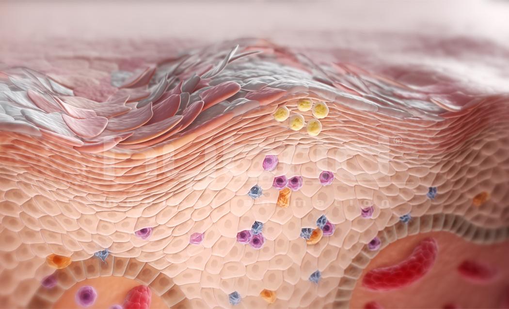 Ученые создали новый препарат для лечения псориаза