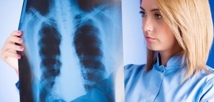 Почему возникает и как лечить правостороннюю пневмонию?
