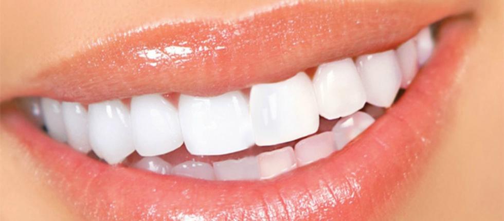 Стоматология. Способы отбеливания зубов