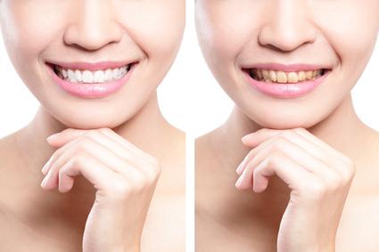 Виды кабинетного отбеливания зубов