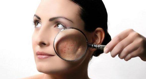 Уход за кожей лица и головы при себорейном дерматите.