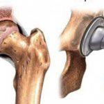 Замена тазобедренного сустава: показания и подготовка к операции