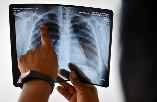 Почему некоторые нарынчане не лечатся от туберкулеза, рассказали в USAID