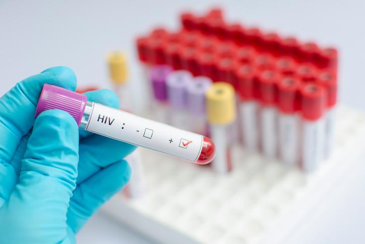 Ученые: в России появилась более опасная версия ВИЧ
