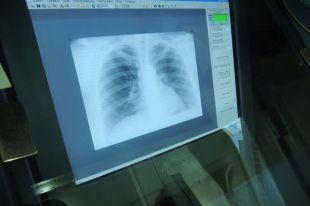 Псковской области снизились заболеваемость и смертность от туберкулеза