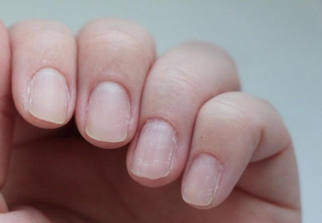 Отслаиваются ногти: причины, вариант лечения и профилактики