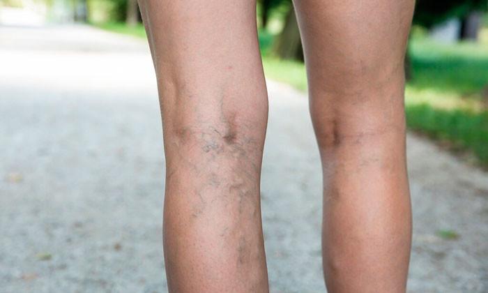 Как справиться с маленькими виднеющимися венками на теле?