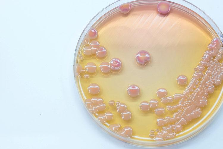 Обнаружена новая супербактерия