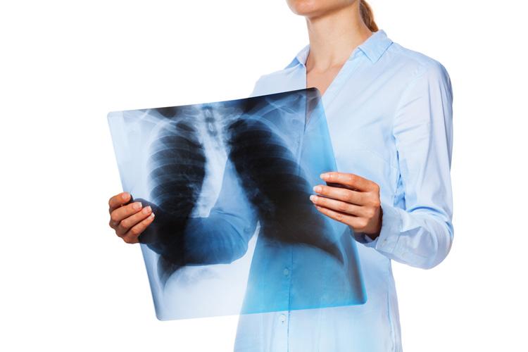 Туберкулез: диагностика, профилактика, лечение
