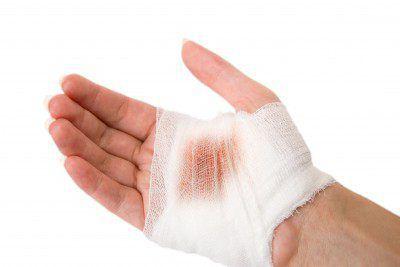 Классификация раневой инфекции