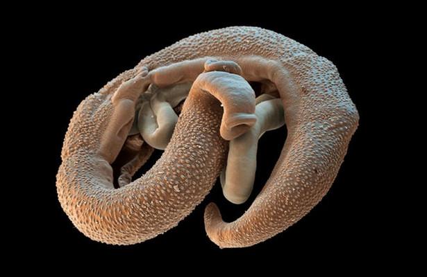 Готовы ли вы заразиться опасными паразитами ради науки?