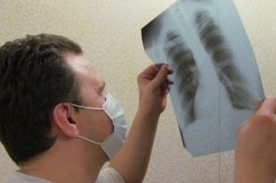 «Палочка Коха мутирует». Фтизиатр о профилактике туберкулеза и зонах риска