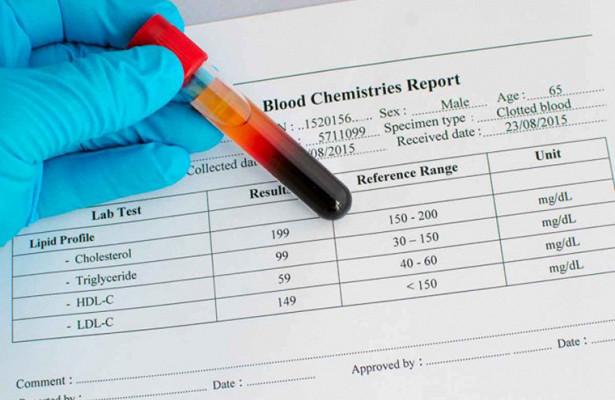 «Хороший» холестерин связан с высоким риском инфекционных заболеваний