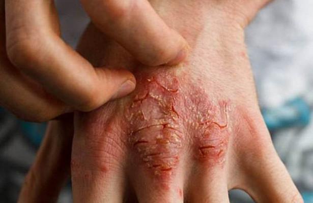 Раствор для кожи на основе бактерий помог в лечении экземы