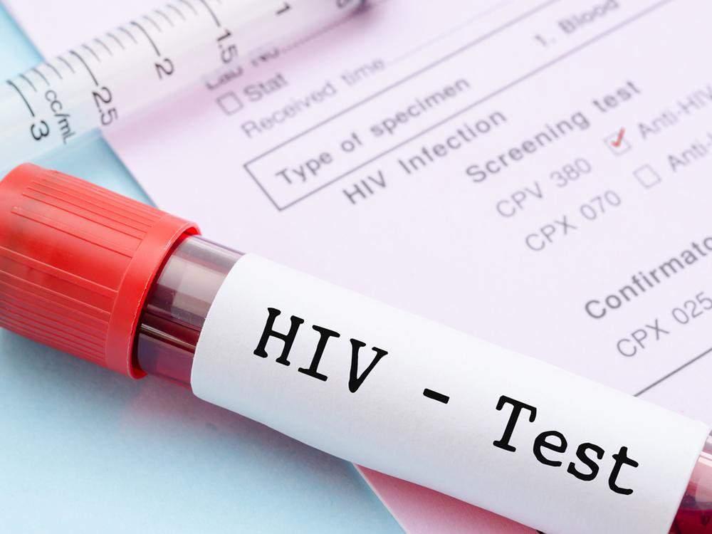 Новое исследование доказало неточность тестов на ВИЧ