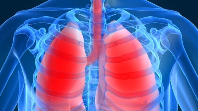 Отказ от курения снижает риск бактериальной пневмонии у ВИЧ-инфицированных