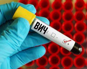 Ученые так и не смогли победить ВИЧ