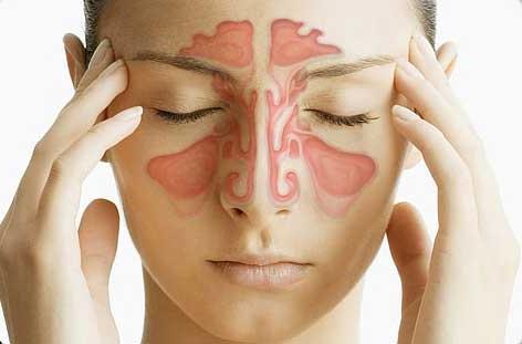 Синусит и гайморит: восстанавливаем дыхание