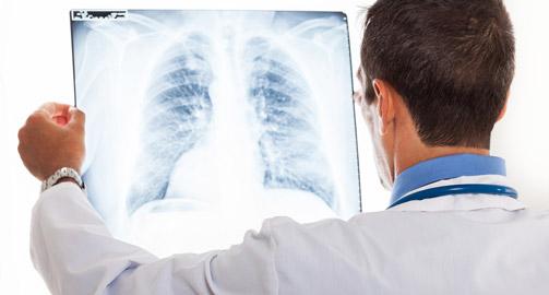 Пневмосклероз легких: причины и симптомы заболевания