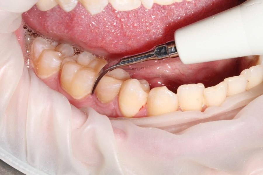 Принцип ультразвукового удаления зубов