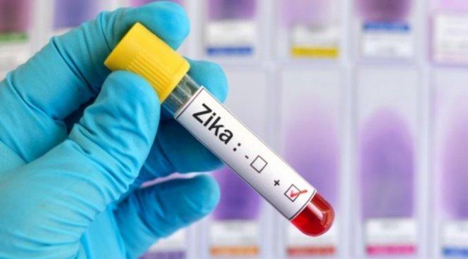 Вирусом Зика будут лечить опухоли мозга