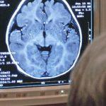 Лечение антибиотиками детей с травмами мозга опасно