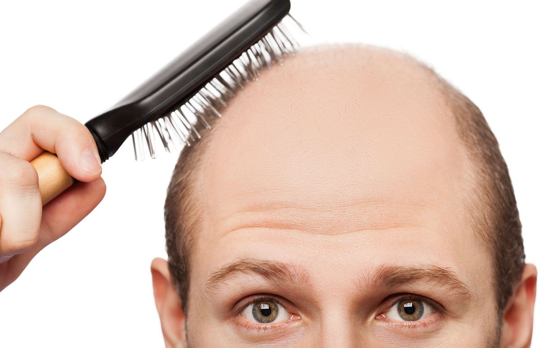 Пересадка волос: секрет шикарной прически