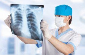 Симптомы воспаления легких и причины возникновения