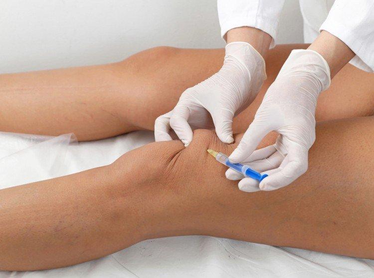 Лечение при помощи плазмолифтинга