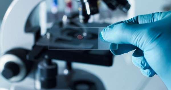 Эпидемия ВИЧ распространилась на еще 4 региона России