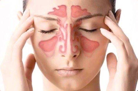 Острый синусит: особенности инфекции