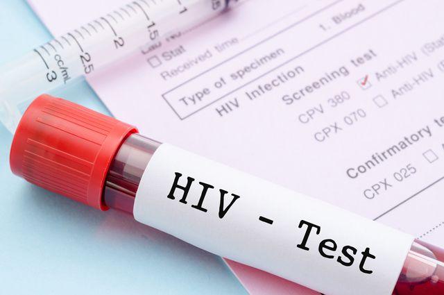 Анализы крови на вич гепатит сроки