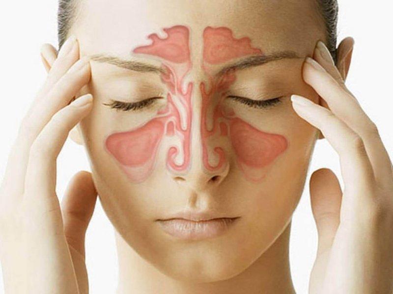 Как отличить синусит от простуды рассказывает врач-терапевт