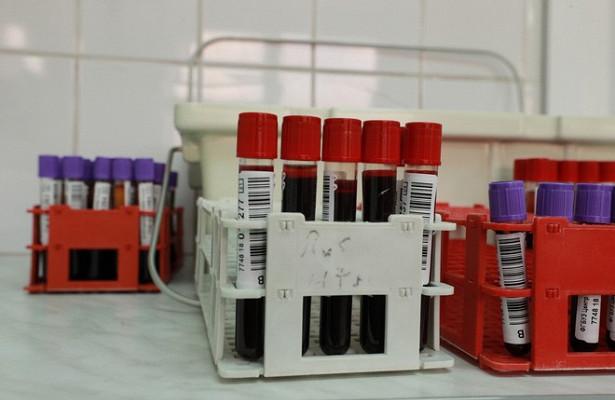 В Геленджике подросток заразил школьницу ВИЧ
