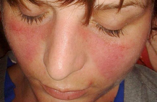 5 симптомов волчанки, которые опасно игнорировать