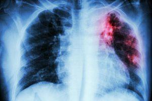 Туберкулез реально излечить, заблокировав иммунную систему