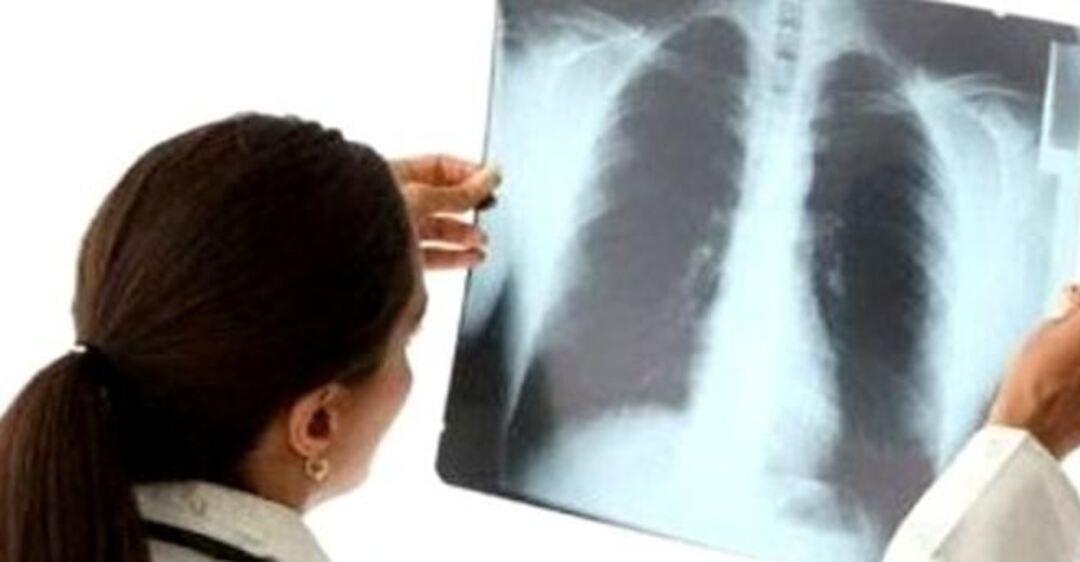 Как распознать бессимптомную пневмонию