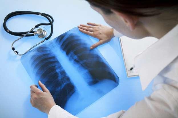 В Минздраве рассказали о незаметной пневмонии у больных COVID-19