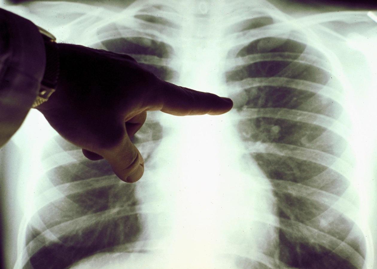 Как отличить атипичную пневмонию от ОРВИ