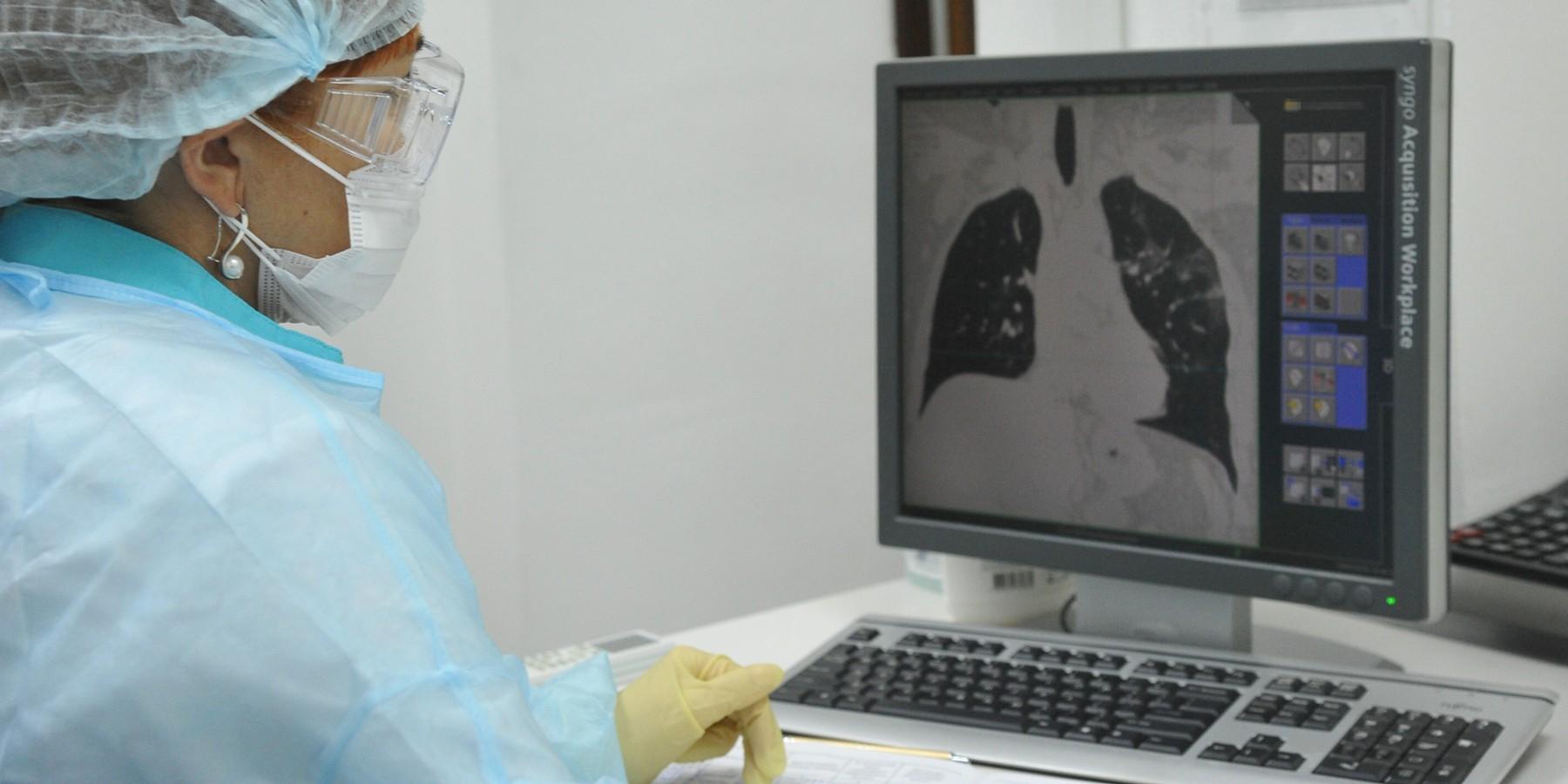 Пульмонолог рассказал о фиброзе легких у переболевших COVID-19