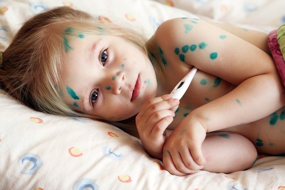 Стоит ли делать прививку детям против ветряной оспы