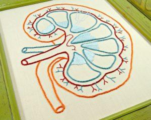 Трансплантация почек от ВИЧ-позитивных доноров может быть безопасна