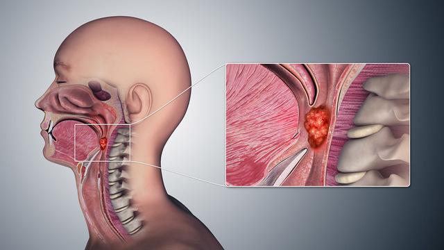 Нож у горла: ВПЧ вызывает рак глотки и ротовой полости