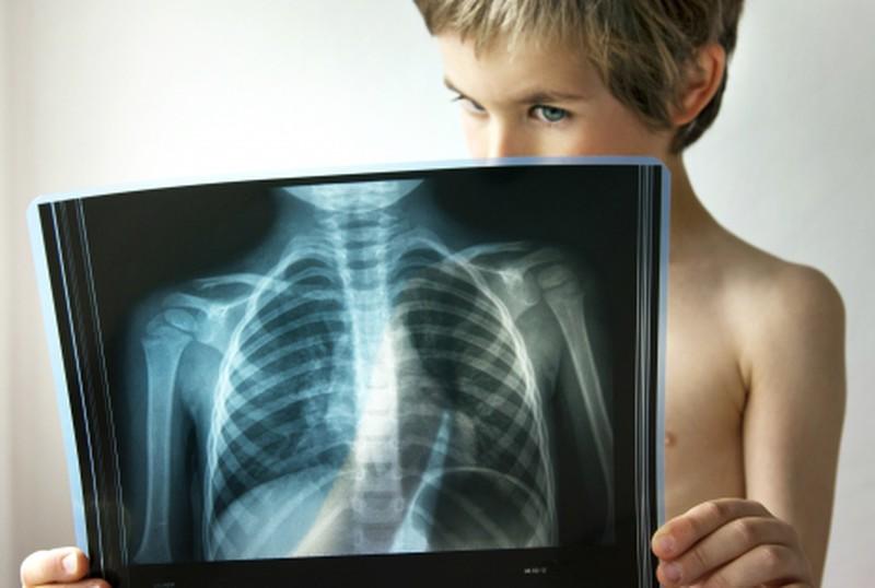 Признаки, указывающих на скрытую пневмонию