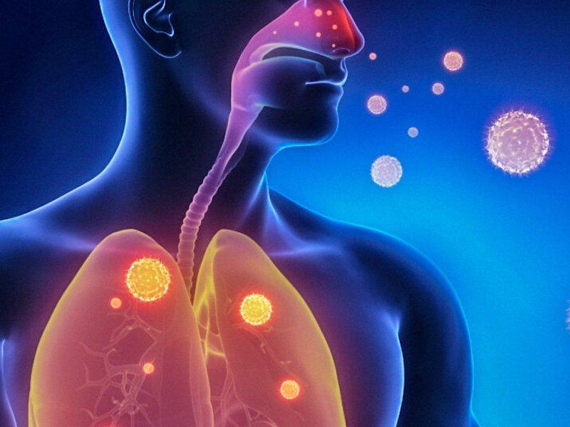 Как определить бессимптомную пневмонию?