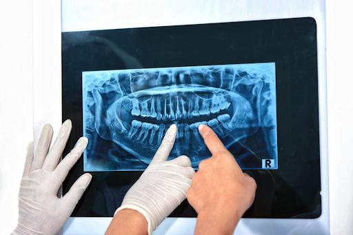 Рентген зубов – информативная и безопасная диагностика