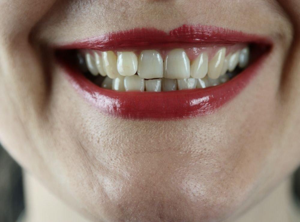 Может ли COVID-19 вызвать выпадение зубов