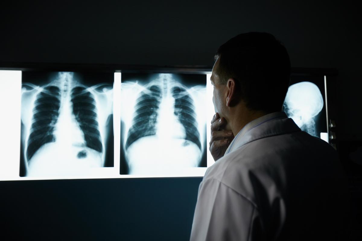 Рентген для уничтожения коронавируса: благо или опасность?