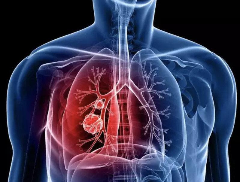 Пневмония: как распознать на ранних стадиях и помочь себе в выздоровлении