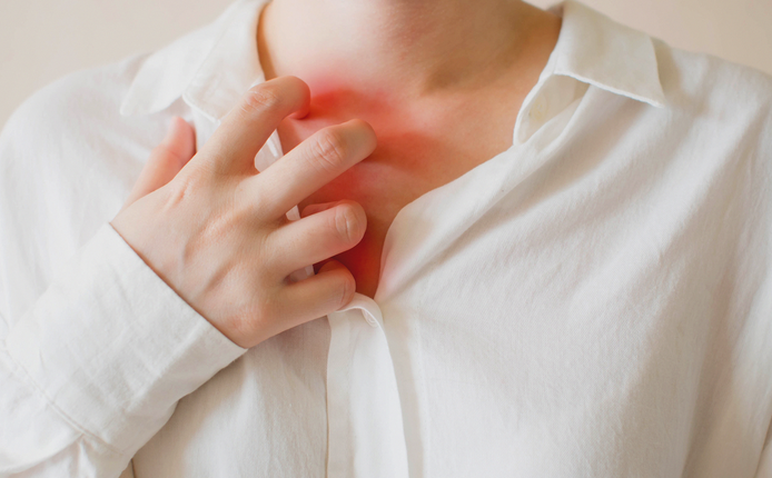 Симптомы коронавируса: как проявляется ковидная крапивница?